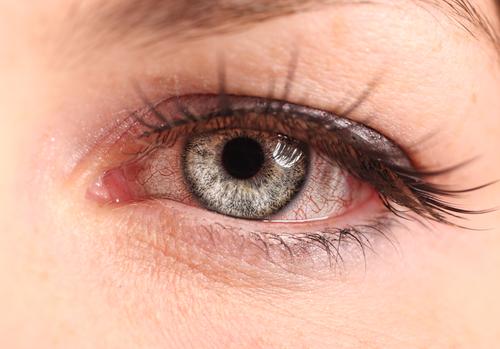 online pink eye help