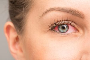 common eye allergy symptoms